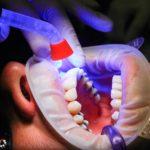 Zła dieta odżywiania się to większe braki w ustach a również ich zgubę